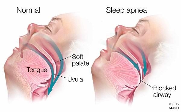 what are the types of sleep apnea?