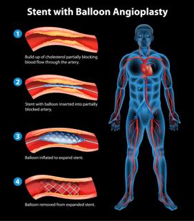 Heart Bypass Surgery | Heart Surgery | Heart Valves ...