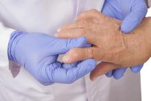 The hands of a medical professional in a white coat and blue gloves examining the deformed hand of a patient with rheumatoid arthritis