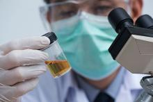 A pathologist with a mask covering his face holding a urine sample bottle